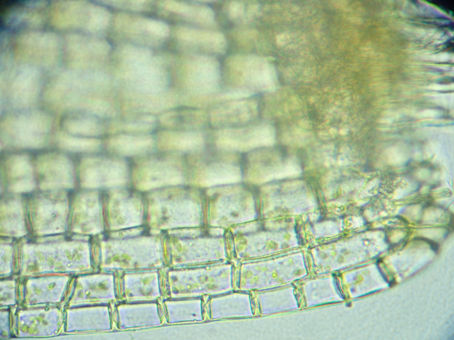 Photographie « Grimmia_alpestris_feuille_base2_TD » de l'espèce « Grimmia alpestris (F.Weber & D.Mohr) Schleich. »